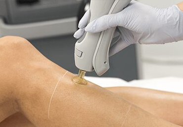 Laser-Hair-Removal-Benefits