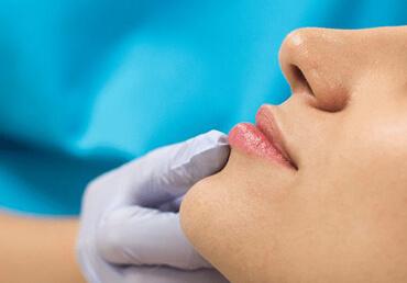 Lip Filler Treatment