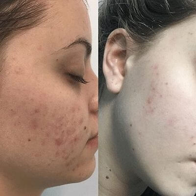 Medi-Aesthetic Peels Before and After 2