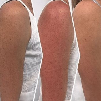 Laser for Pigmentation and Redness Before and After 1