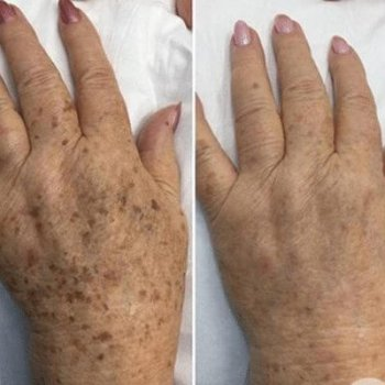 Laser for Pigmentation and Redness Before and After 2