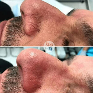 Laser for Veins Before and After