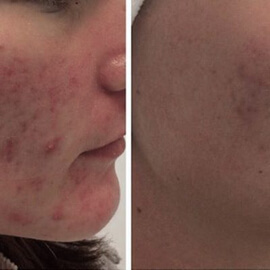 acne-before-after-3