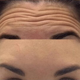 wrinkled forehead