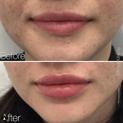 Lip Filler, Plump lips