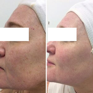 Laser for facial veins
