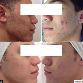 Acne Before & After copy