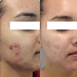 Acne Laser Skin Treatments Before and After
