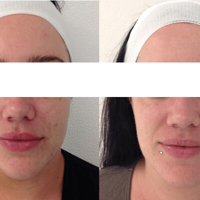 Before and After Micro Needling Page