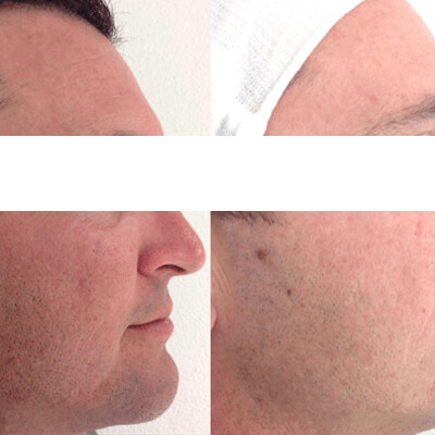 Before and After Micro Needling Page2